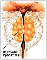 Простатит и простата лечение