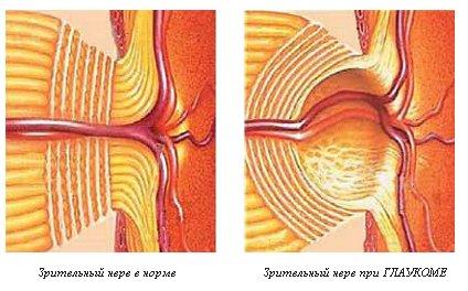 Глаукома низкого давления