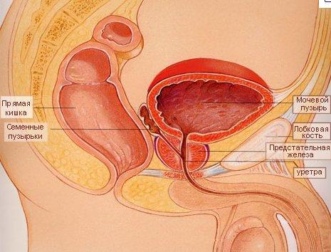 Симптомы метастаз в кости при раке простаты