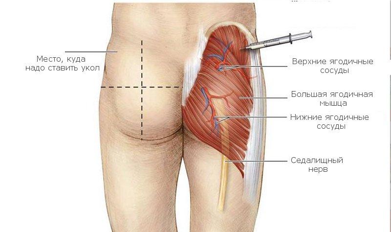 мужское если укол попал в нерв термобелье лучшее будет