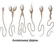 Дегенеративные формы сперматозойдов