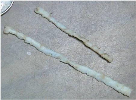 Дифиллоботриоз. Заражение ленточными червями.