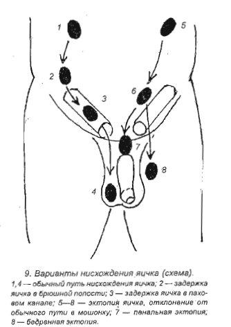Что делать при опущения яичка