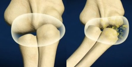 Причина хруста суставов воздух почему опух сустав на пальце
