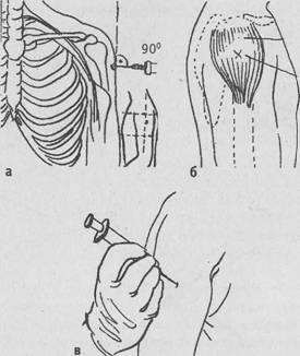 Как сделать укол в руку