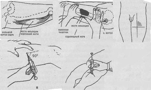 Как сделать укол в руку фото 873